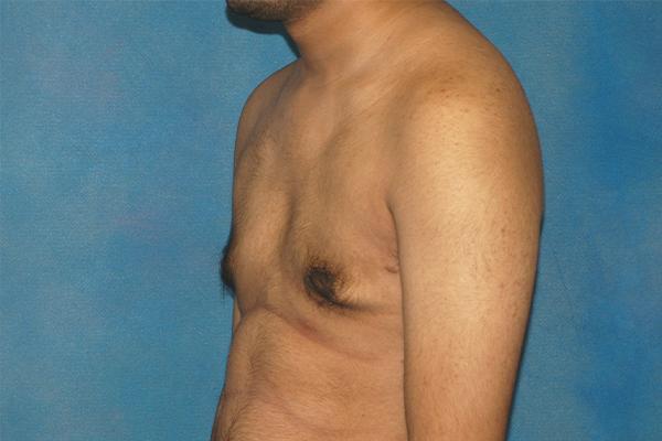 gynecomastia patient