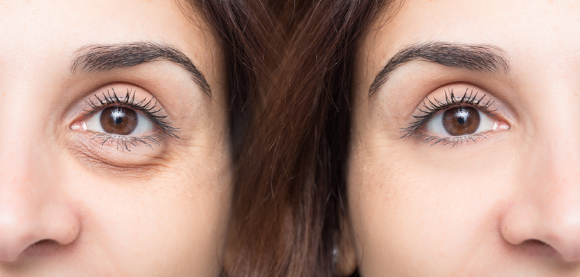 eyes side by side before and after