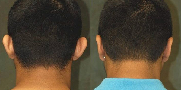 ear surgery before and after