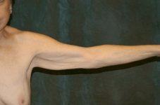 arm lift patient