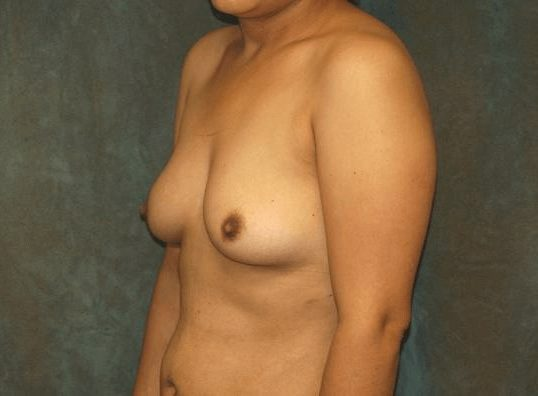 breast augmentation with lift patient
