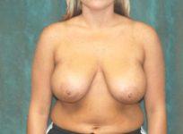 breast reduction patient