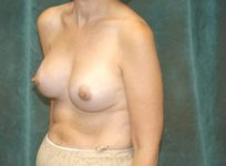 breast revision patient