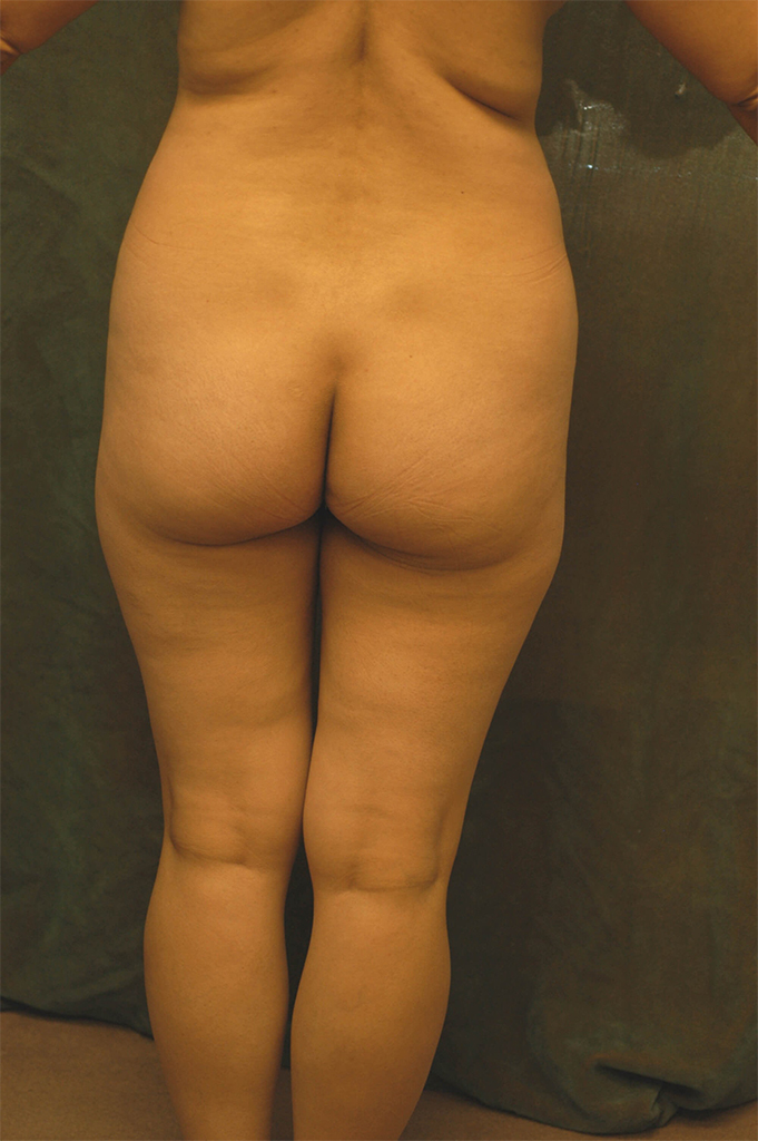 buttock implant patient