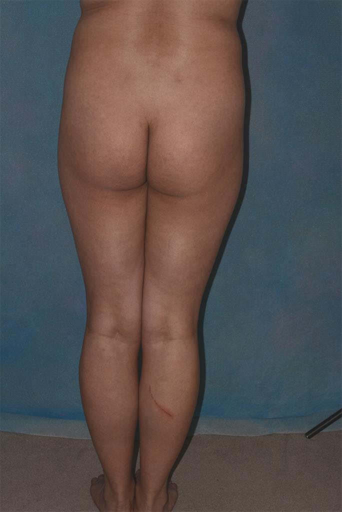 buttock implant patient