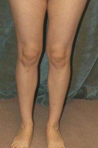 calf implant patient