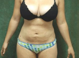 liposuction patient