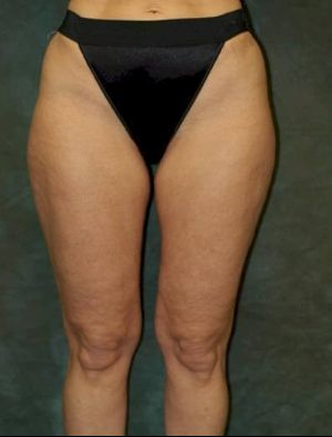medial thigh lift patient