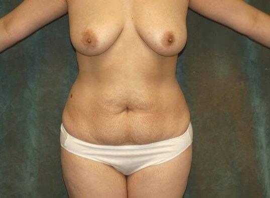 tummy tuck patient