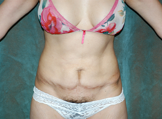 tummy tuck revision patient